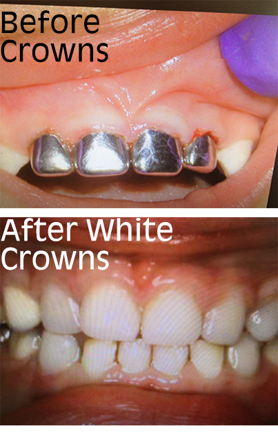 white crowns1