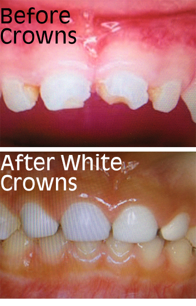 white crowns2
